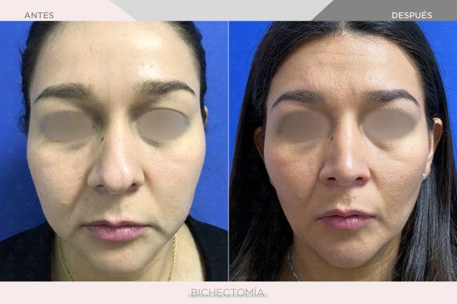 Bichectomia - Dra. Denise Ventura