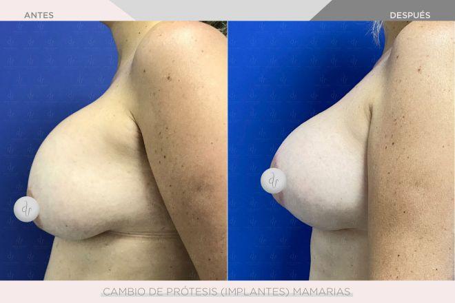 Cambio de Prótesis Mamarias