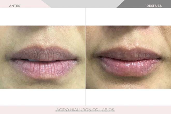 Perfilamiento y Aumento de Labios - Ácido Hialurónico