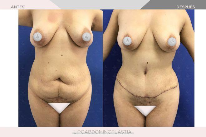 Abdominoplastia - Lipoabdominoplastia