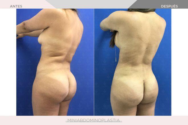 Abdominoplastia - Miniabdominoplastia
