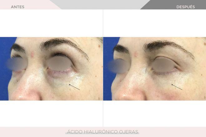 Ojeras - Ácido Hialurónico